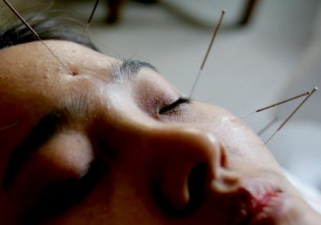 What Exactly Is Cosmetic Facial Acupuncture?