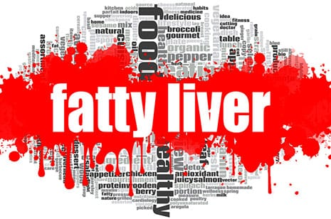 Fatty Liver Disease First in Psoriasis
