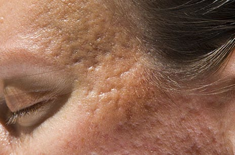 Botulinum Toxin Injections May Improve Scarring
