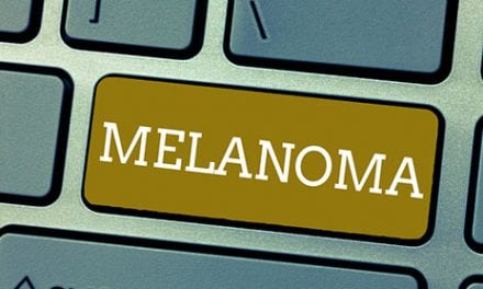 Is Your Melanoma Hot Enough for Immunotherapy?