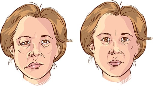 'Bionic Face' Treatment on the Horizon for Facial Paralysis?