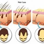 Hair Loss and Balding: Hidden Viruses Could Be the Culprit