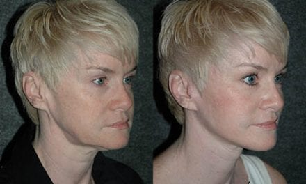New Surgical Technique Aims to Rejuvenate the Jawline