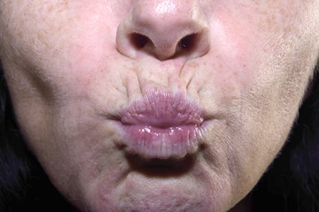 Volume Loss, Not Just 'Sagging,' Causes Upper Lip Aging