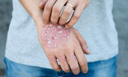 Molecule Discovery Holds Promise for Gene Therapies for Psoriasis