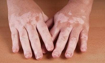 Combined Dermal, Epidermal Cell Transplant May Be Better for Vitiligo