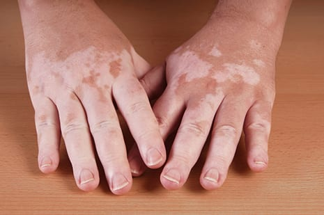 Vitiligo Could Result from Both Genetic and Environmental Factors