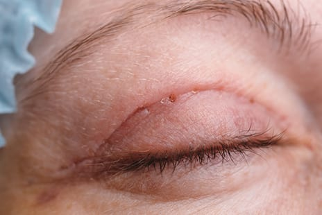 New Device May Help Minimize Cosmetic Surgery Scarring