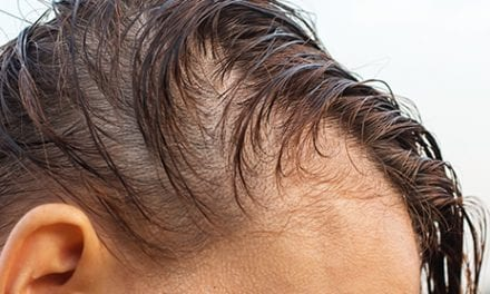 Platelet-Rich Plasma Could Be Effective For Hair Loss