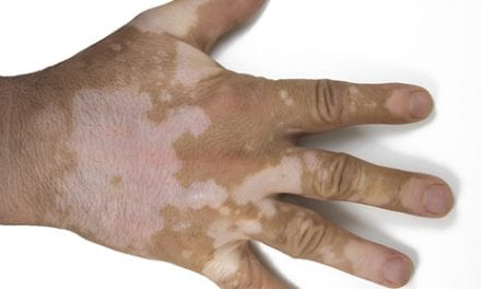 Study Estimates Association Between Psoriasis and Vitiligo