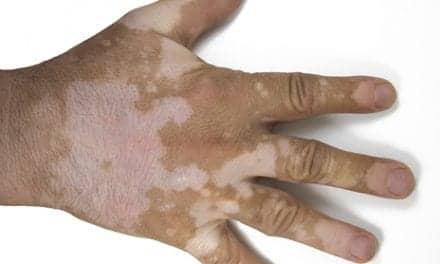 Study Estimates Association Between Psoriasis and Vitiligo