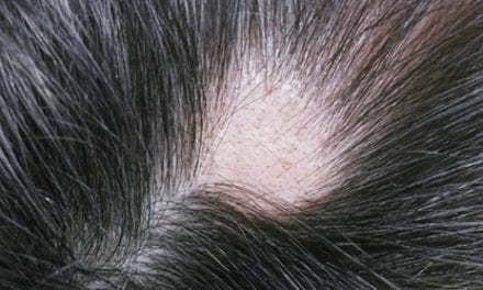 Cyclosporin Is Moderately Effective for Alopecia, Study Notes
