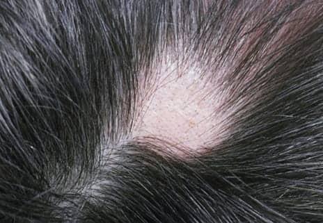Cyclosporin Is Moderately Effective for Alopecia, Study Notes