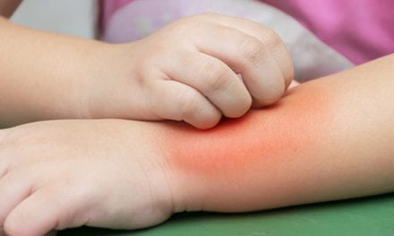 Scratching May Prime Children with Eczema for Food Allergy and Anaphylaxis