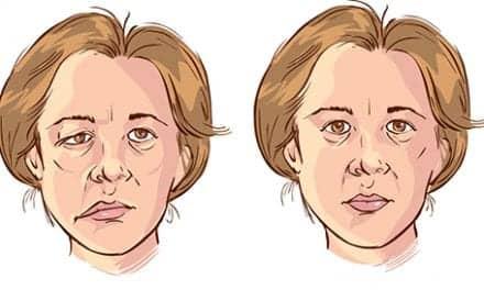 Researchers Create Standardized Measurement for Pediatric Facial Palsy