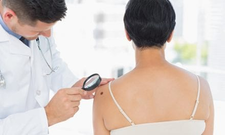Total-Body Exams Fuel the Fight Against Melanoma, Campaign Opines