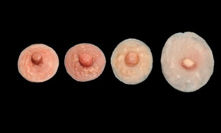 Nipple Reconstruction Techniques Could Be Improved with 3D Scaffolds