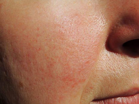 Study Suggests Rosacea Improvement from Topical Products Use