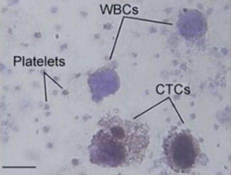 Sensitive, Noninvasive Platform Detects Circulating Tumor Cells in Melanoma Patients