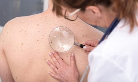 What If You Could Spot Skin Cancer Before It Got Too Serious?