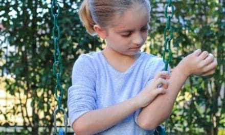 Eczema Skin Cracks May Promote Allergic Diseases