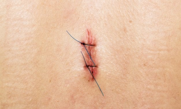 Mohs Surgery Use for Melanoma Treatment is on the Rise
