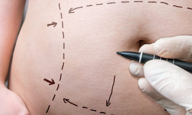 Changes to Abdominal Muscles After Pregnancy May Affect 'Tummy Tuck' Results