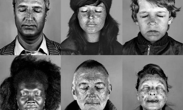 Should You Get a Scary UV Photo of Your Skin Damage?
