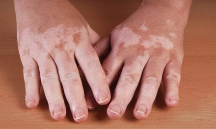 Numerous Diseases Are Associated with Vitiligo, Study Suggests