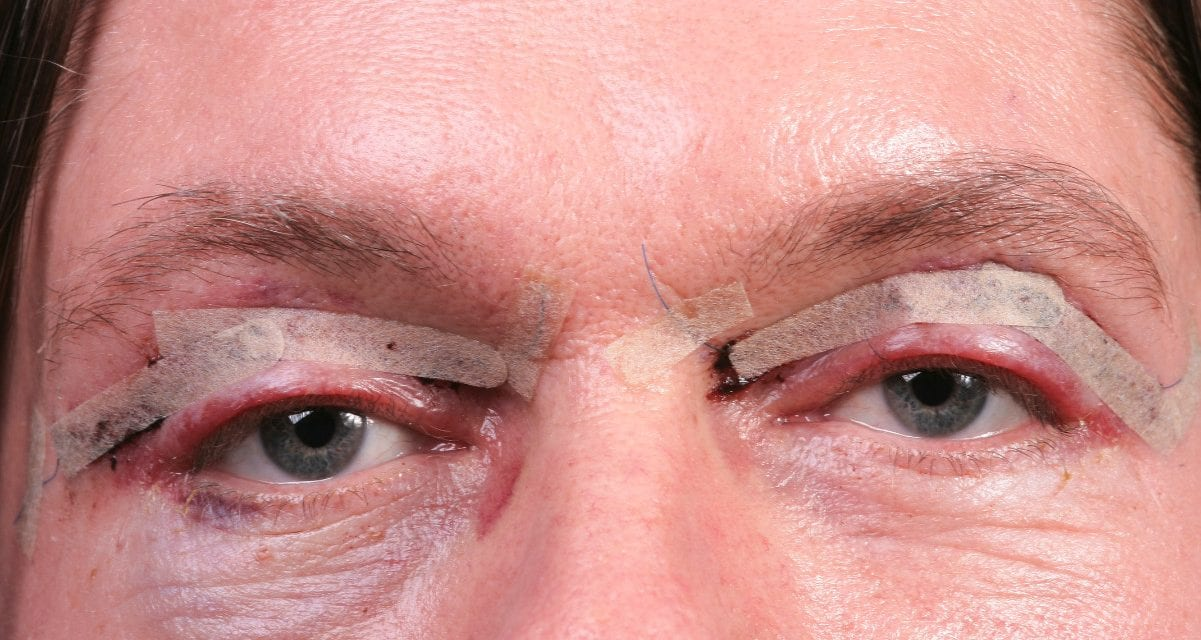 Americans Crave Younger-Looking Eyes, According to Facial Plastic Surgeons