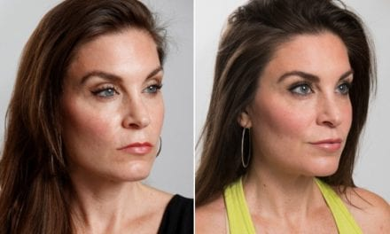 Women Are Flocking to Plastic Surgeons to Fix 'Resting Bitch Face'