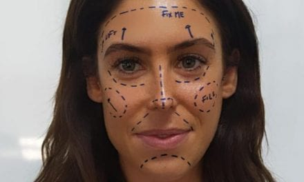 """Instagram 'Fueling Mental Health Crisis' with """"Fix Me"""" Plastic Surgery Filter"""