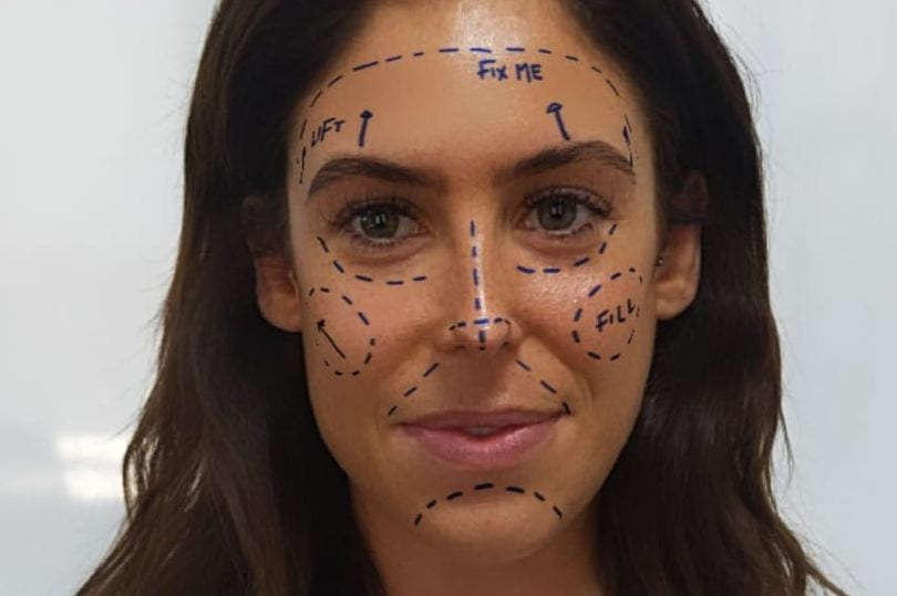 "Instagram 'Fueling Mental Health Crisis' with ""Fix Me"" Plastic Surgery Filter"