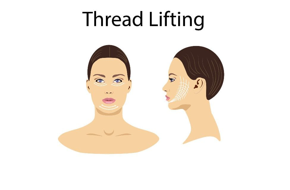 Why Many Are Now Opting for Thread Lifts Instead of Surgical Face Lifts