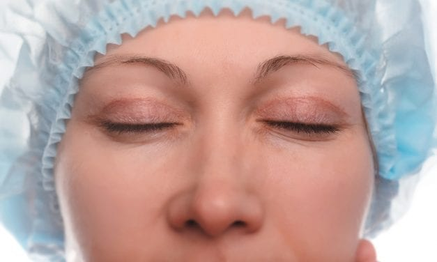 Fibrin Glue Significantly Reduces Bruising, Bleeding in Upper Eyelid Blepharoplasty