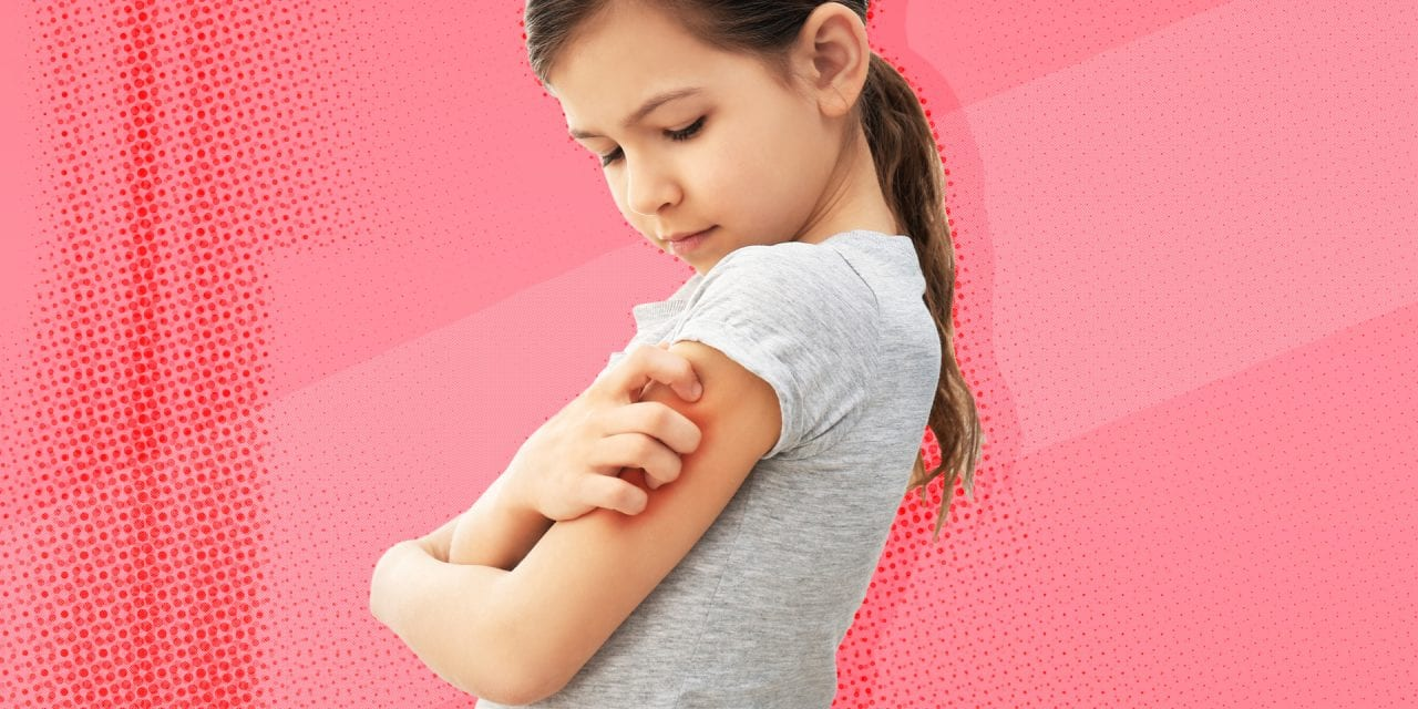 Helping Your Child Deal with Eczema