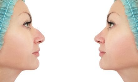 Is the Rhinoplasty Industry Dying?