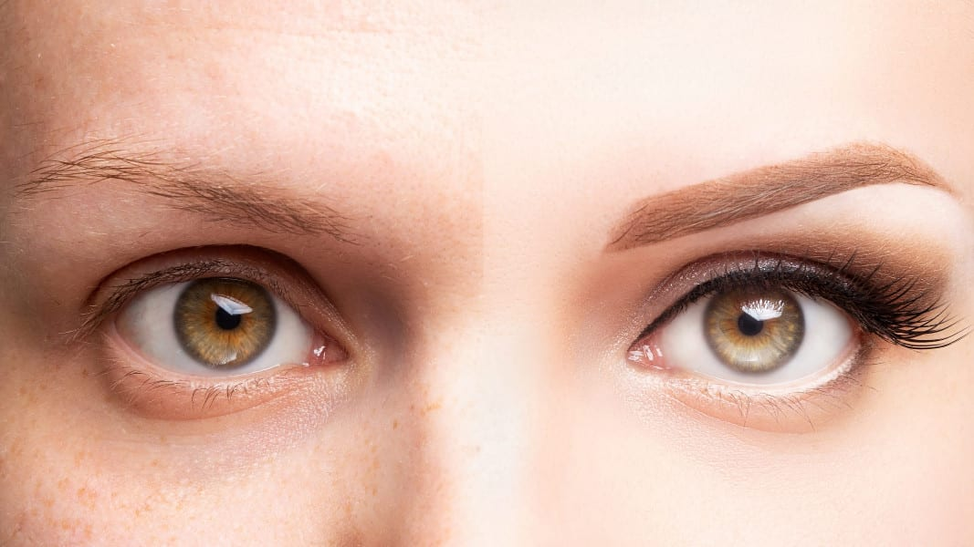 What to Expect from an Eyebrow Transplant: Procedure, Cost, and Side Effects