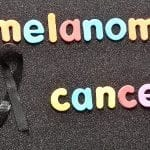 Melanoma Rates Decline Among US Adolescents, Young Adults