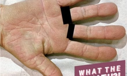 The Strange 'Velvety' Appearance of This Woman's Palms Was Actually a Sign of Lung Cancer