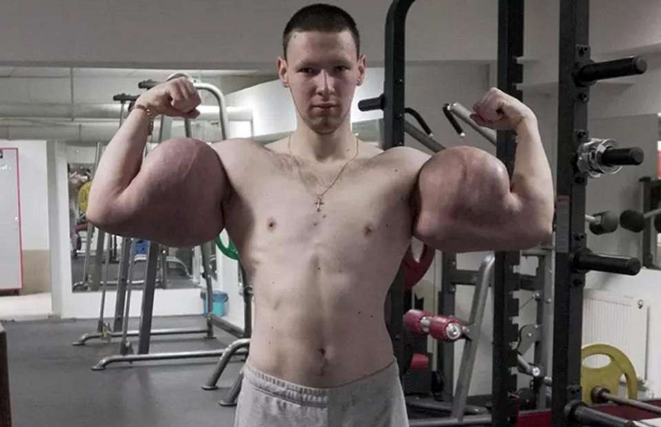 Russian 'Popeye' Has Life-Saving Surgery to Remove Chemicals from His Biceps