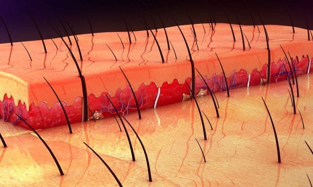Some Skin Cancers May Start in Hair Follicles, According to Study