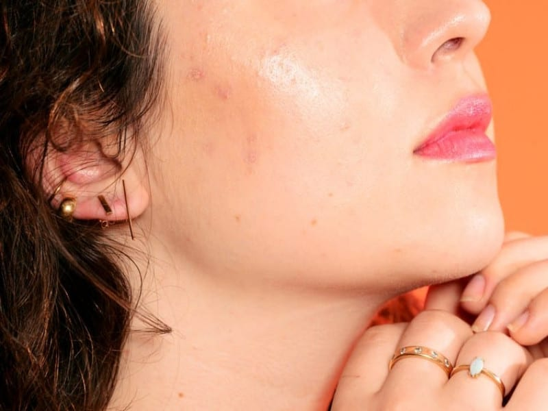 Here's What's Causing Acne on Every Part of Your Face