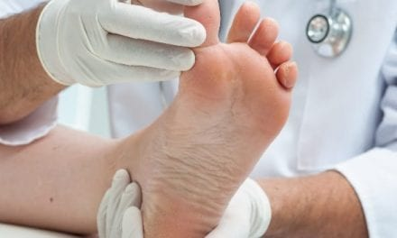 Mechanical Stress May Play a Role in Plantar Melanoma