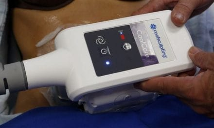 What You Need to Know About Fat-Freezing Technique 'CoolSculpting'