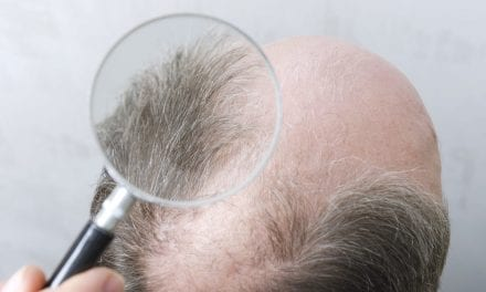 New Technique May Reveal the Health of Human Hair Follicles