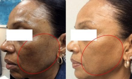 Low-Energy Fractional Laser Demonstrates Improved  Hyperpigmentation in Patients with Darker Skin