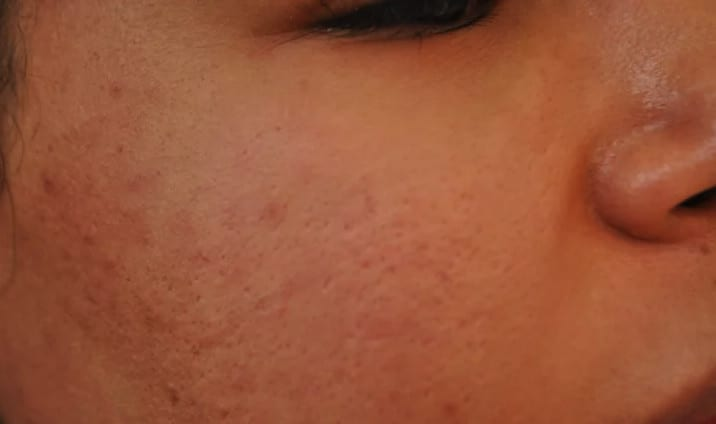 I Got Filler To Reduce My Acne Scarring — Here Are The Results
