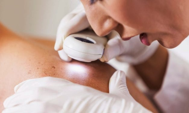 Melanoma Risk Not Significantly Increased With Premenopausal Progestogen Use