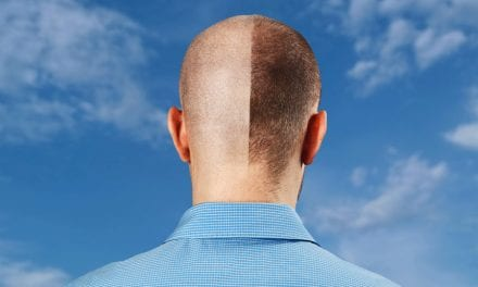 Every 13th Man Has a Hair Transplant According to Bookimed Study